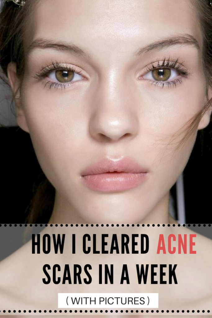 Discover How to Fade Facial Acne Scars in a Week
