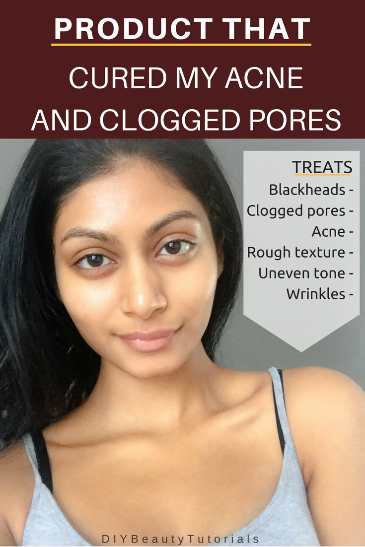how to stop clogged pores on face